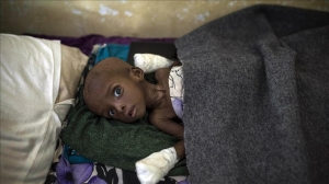 400,000 Congolese children risk starvation, UNICEF says